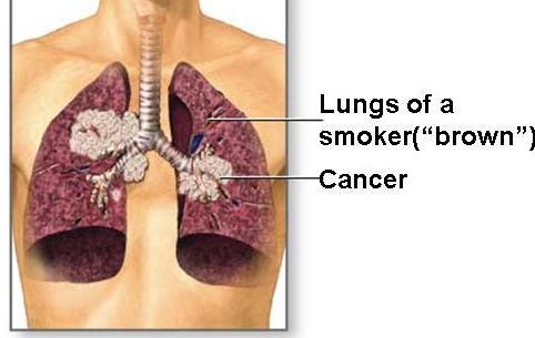 شاهد اضرار التدخين علي الانسان .. + صور